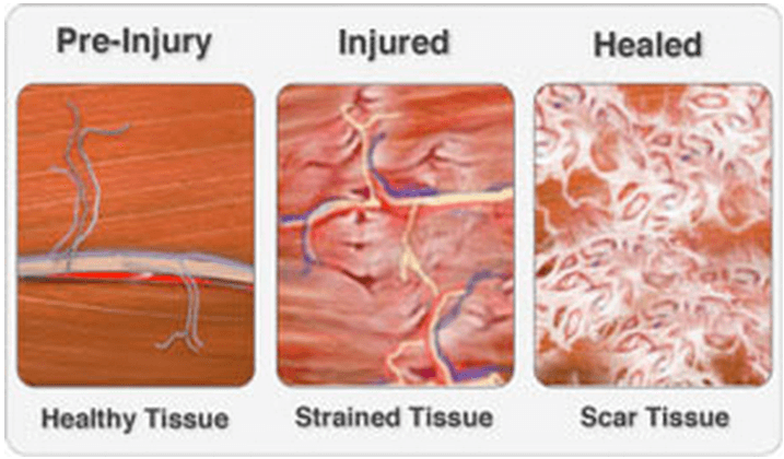 Formation of scar tissue following muscle strain
